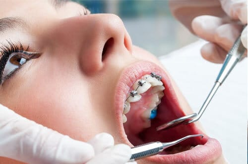 Kid Dentist Near Crest Hill Illinois