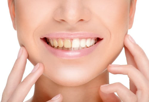 Professional Teeth Whitening in Shorewood Illinois