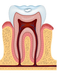 stage 1 of tooth decay with white spots
