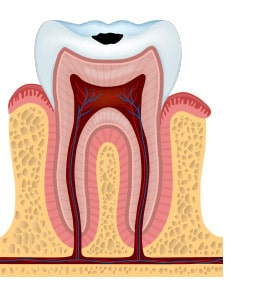 stage 2 of tooth decay with enamel decay