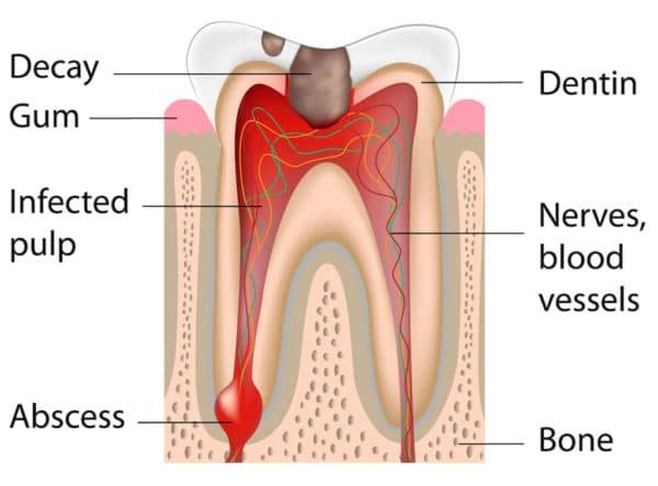 tooth graphic displaying different stages of damage